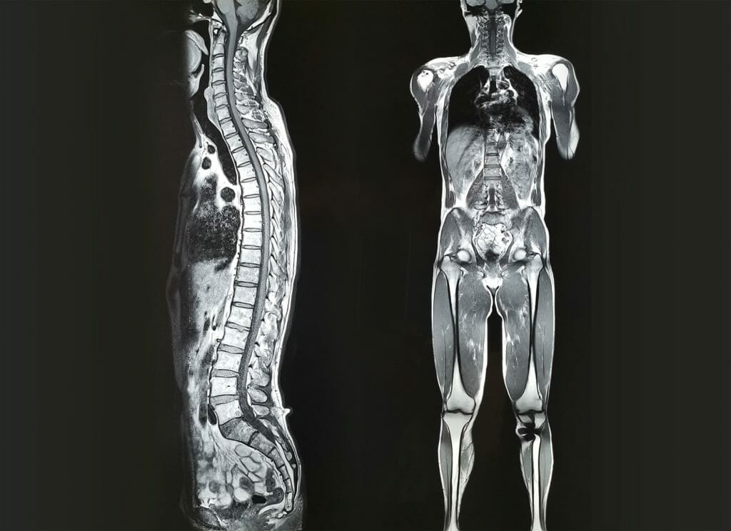 mri whole body scan