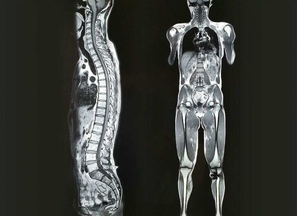 mri whole body scan