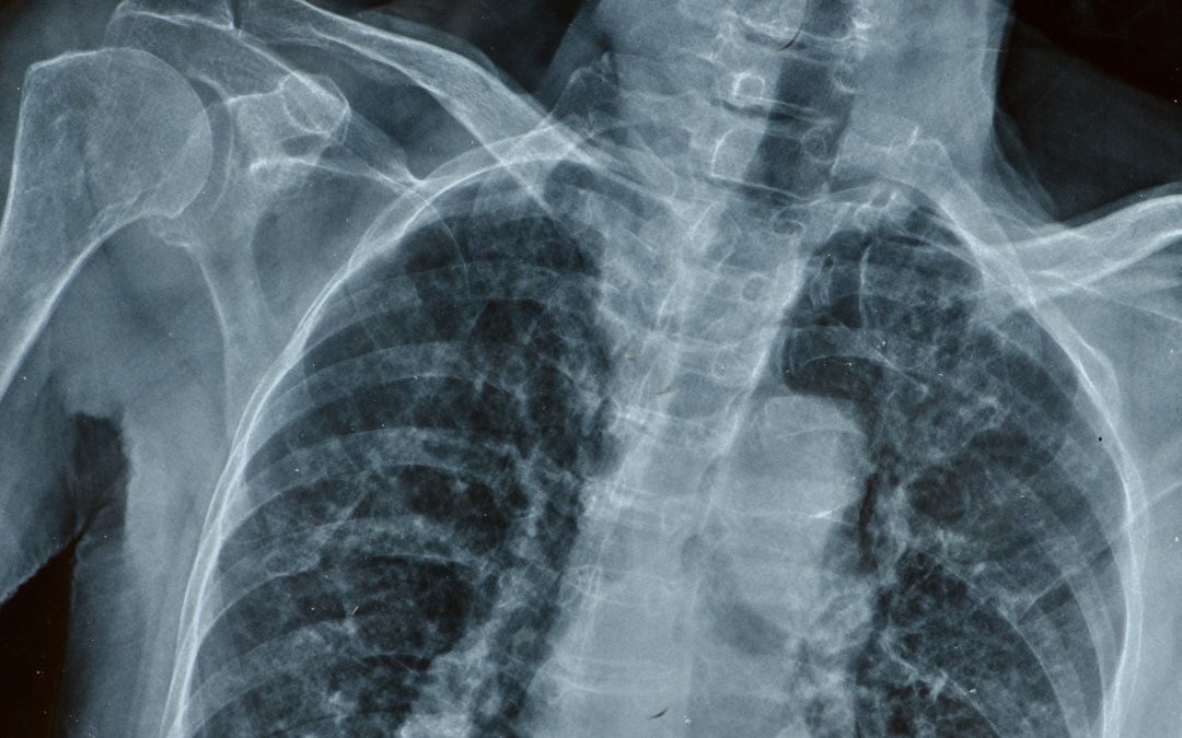 X-Ray Equipment for Your Medical Facility – Which One is Best